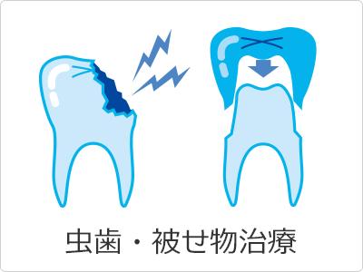 虫歯・被せ物治療